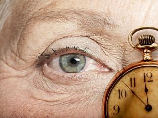 Degeneración macular asociada a la edad. DMAE