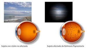 vision-con-retinosis-pigmentaria