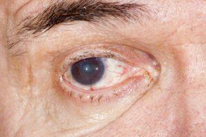 cataratas maduras en los ojos