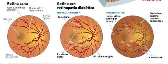 retinopatia-diabetica-atencion-en-guadalajara-mexico-copia-2