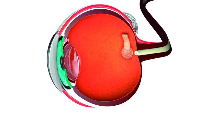 Nueva prótesis de retina
