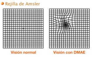 Amsler alterado