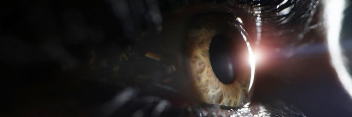 ¿Lente intraocular sucia? Capsulotomía con láser Nd:Yag