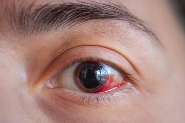 ¿Qué hacer cuando hay una hemorragia en el ojo?